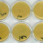 Microbiële stalen na reiniging desinfectie